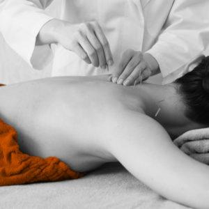 fitgate Akupunktur